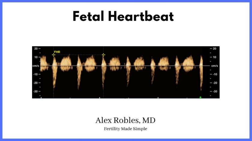 Early Pregnancy-fetal-heartbeat