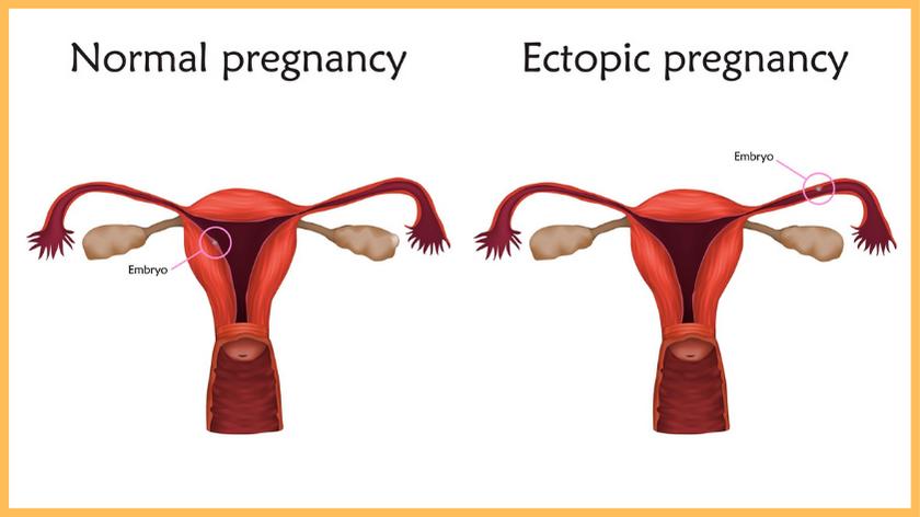 fallopian-tube-ectopic-pregnancy